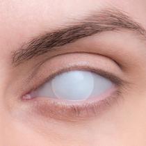 Карнавальные линзы Lensmam Blind White